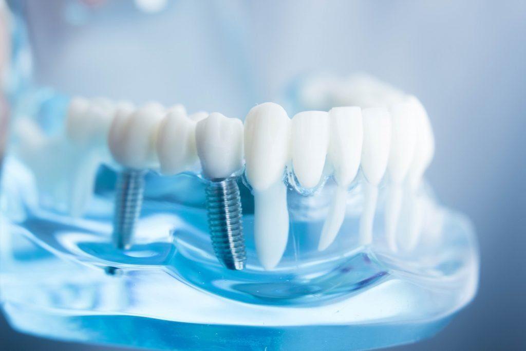 Prótesis de implantes dentales